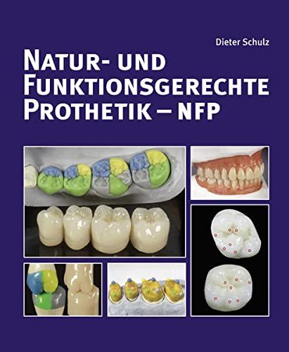 Natur- und funktionsgerechte Prothetik - NFP: Dieter Schulz