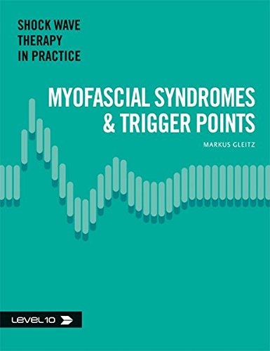 9783981383959: Myofascial Syndromes & Trigger Points (Shock Wave Therapy in Practice)