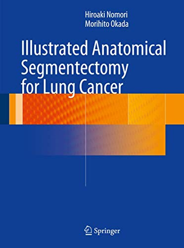 9784431541431: Illustrated Anatomical Segmentectomy for Lung Cancer