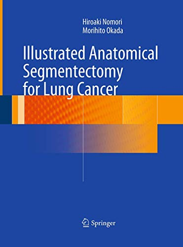 9784431561217: Illustrated Anatomical Segmentectomy for Lung Cancer