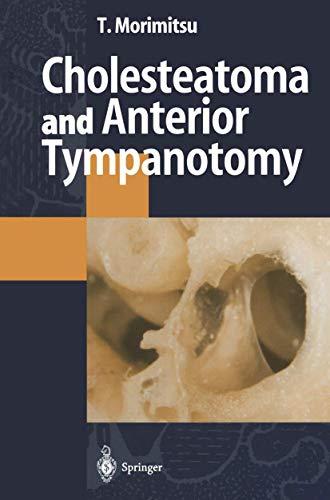 9784431701972: Cholesteatoma and Anterior Tympanotomy
