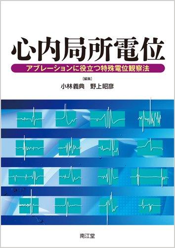 9784524268696: Shinnai kyokusho den'i : aburēshon ni yakudatsu tokushu den'i kansatsuhō