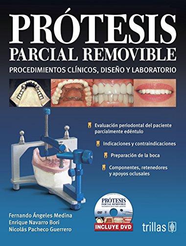 9786071702944: Protesis parcial removible / Removable Partial Denture: Procedimientos clinicos, diseno y laboratorio / Clinical Procedures, Laboratory and Design (Spanish Edition)