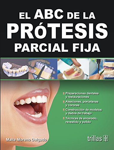 9786071708199: El ABC de la prótesis parcial fija / The ABCs of fixed partial denture (Spanish Edition)