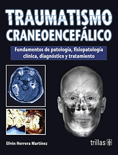 9786071709158: Traumatismo craneoencefalico / Traumatic brain injury (Spanish Edition)