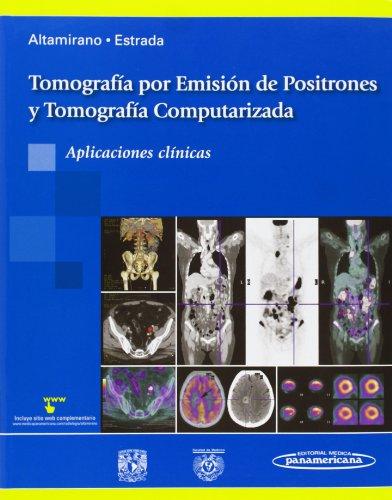 Tomografía por Emisión de Positrones y Tomografía: Ley, Javier Altamirano;