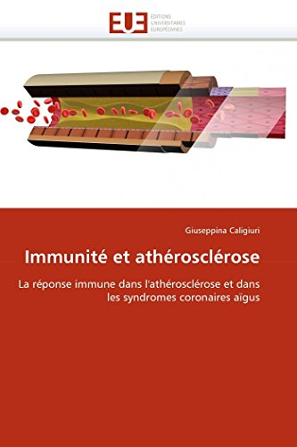 9786131539510: Immunité et athérosclérose: La réponse immune dans l'athérosclérose et dans les syndromes coronaires aïgus (Omn.Univ.Europ.) (French Edition)