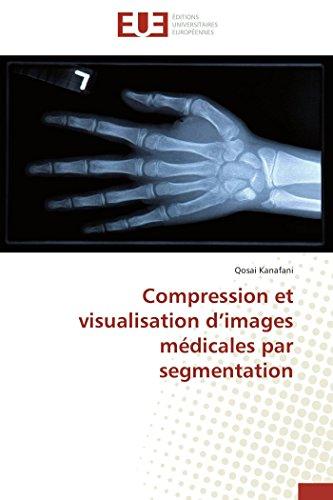 9786131586828: Compression et visualisation d'images médicales par segmentation (Omn.Univ.Europ.) (French Edition)