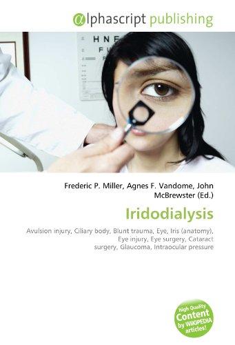9786134002493: Iridodialysis: Avulsion injury, Ciliary body, Blunt trauma, Eye, Iris (anatomy), Eye injury, Eye surgery, Cataract surgery, Glaucoma, Intraocular pressure
