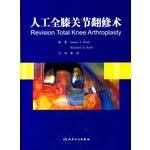 Genuine book total knee revision surgery JamesV.Bono: James V.Bono