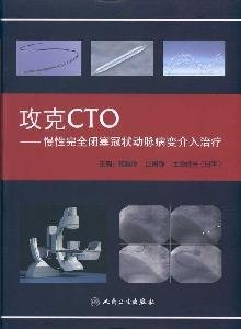 Genuine ; 109-B6; capture CTO- chronic total occlusion of coronary artery disease intervention(...