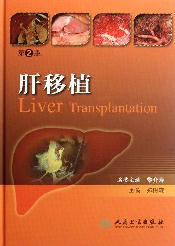 Genuine new book liver transplantation (2) People's Medical Publishing House 158.00(Chinese ...