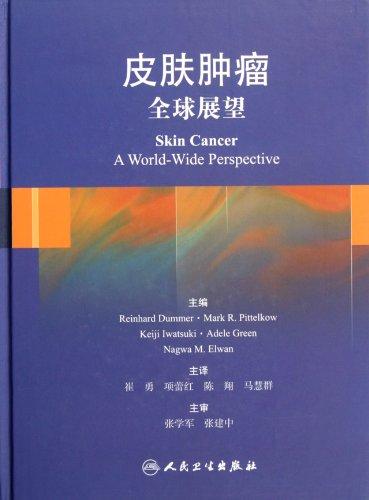 Skin tumors - Global Outlook(Chinese Edition): BEN SHE.YI MING