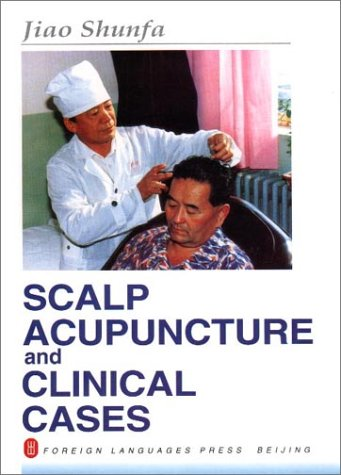 9787119018065: Scalp Acupuncture and Clinical Cases