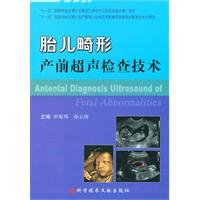 9787502367657: Prenatal ultrasound fetal malformation technology(Chinese Edition)