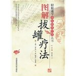 Graphic cupping therapy(Chinese Edition): BU XIANG