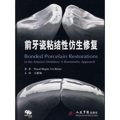 9787509120033: ceramic bonding front teeth biomimetic repair