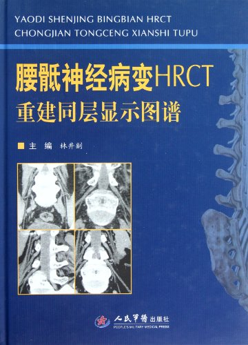 9787509157244: HRCT Reconstruction Layer Display Spectrum of Lumbosacral Neuropathy(best version) (Chinese Edition)