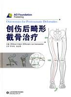 9787533155841: osteotomy for post-traumatic deformities