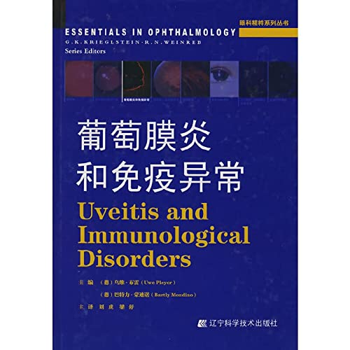 Uveitis and immune abnormalities (ophthalmology Pristine Series)(Chinese Edition)(Old-Used): LIU HU...