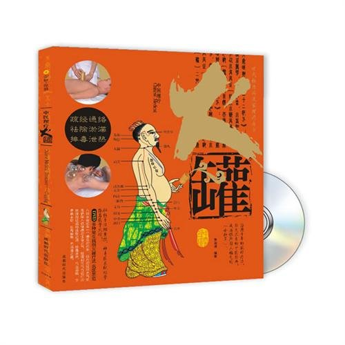 9787807058168: Chinese medicine therapy, cupping (with CD)