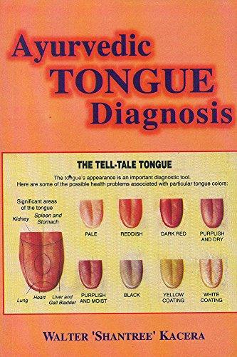 Ayurvedic Tongue Diagnosis: Walter 'Shantree' Kacera; Preface By David Frawley; Foreword By Gabriel...