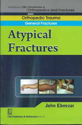 Atypical Fractures (CBS Handbooks in Orthopedics and Fractures, Orthopedic Trauma, General ...
