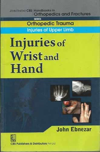 Injuries of Wrist and Hand (CBS Handbooks in Orthopedics and Fractures, Orthopedic Trauma, Injuries...