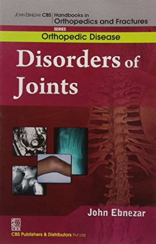 Disorders of the Joints (CBS Handbooks in Orthopedics and Fractures, Common Orthopedic Disease): ...