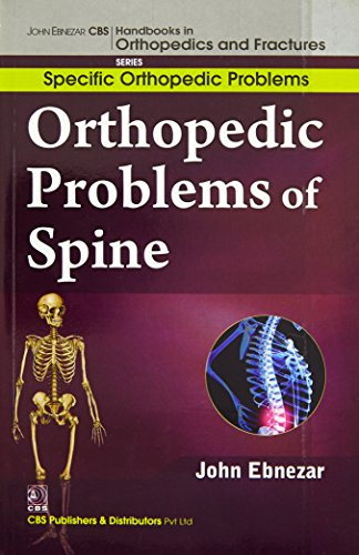 9788123921167: John Ebnezar CBS Handbooks in Orthopedics and Factures: Specific Orthopedic Problems :Orthopedic Problems of Spine