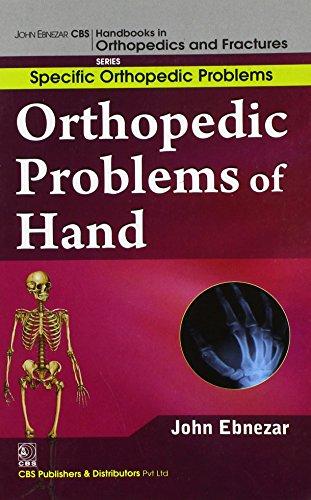 9788123921259: John Ebnezar CBS Handbooks in Orthopedics and Factures: Specific Orthopedic Problems : Orthopedic Problems of Hand