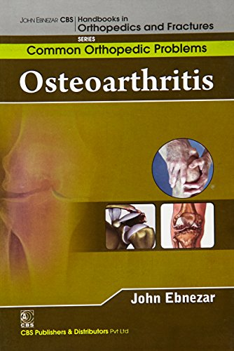 Osteoarthritis (CBS Handbooks in Orthopedics and Fractures, Common Orthopedic Problems): John ...