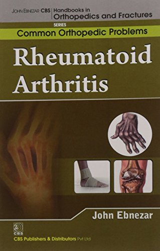 9788123921723: John Ebnezar CBS Handbooks in Orthopedics and Factures: Common Orthopedic Problems : Rheumatoid Arthritis