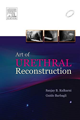 9788131230541: Art of Urethral Reconstruction