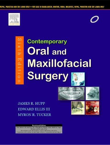 CONTEMPORARY ORAL+MAXILLOFACIAL SURGERY: James R. Hupp,Edward