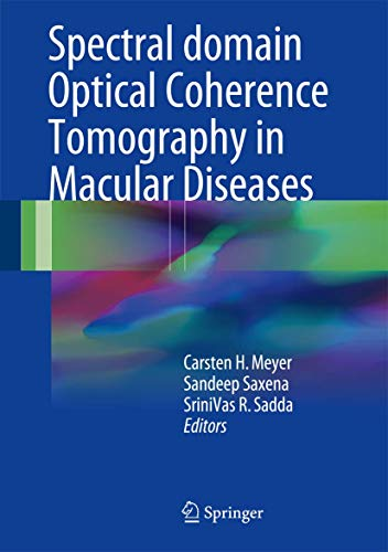 9788132236085: Spectral Domain Optical Coherence Tomography in Macular Diseases