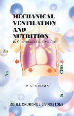 9788170421634: Mechanical Ventilation and Nutrition ; In Critically Ill Patients