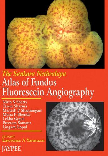 The Sankara Nethralaya Atlas of Fundus Fluorescein Anagiography: Nitin S Shetty, T Sharma, M P ...