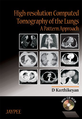 9788180613272: High-resolution Computed Tomography of the Lungs A Pattern Approach