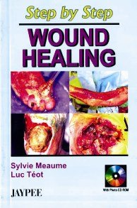 9788180613821: Step by Step Wound Healing