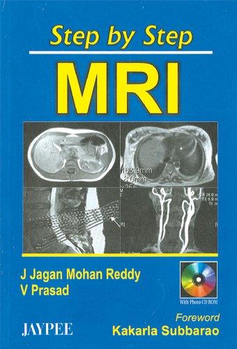 Step by Step MRI: J. Jagan Mohan Reddy, V. Prasad (Author) & Kakarla Subbarao (Forwd)