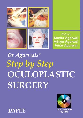 Dr Agarwal`s Step by Step Oculoplastic Surgery: Sunita Agarwal, Athiya Agarwal & Amar Agarwal