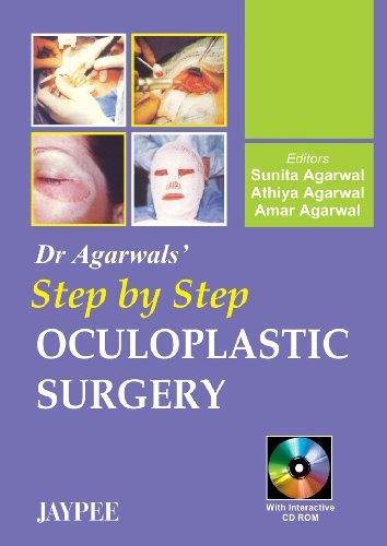 Dr Agarwal`s Step by Step Oculoplastic Surgery: Sunita Agarwal, Athiya