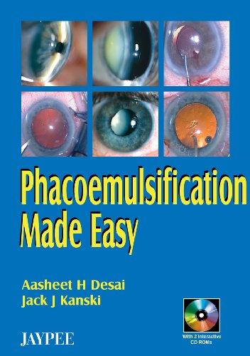 Phacoemulsification Made Easy: Aasheet H. Desai,Jack J. Kanski