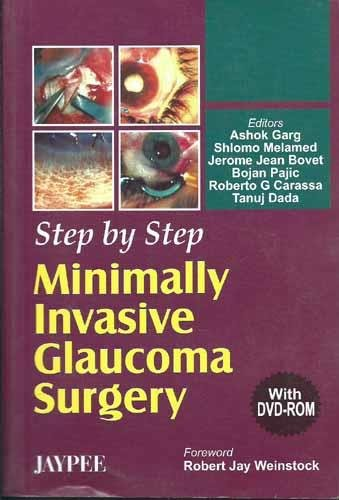 9788180617386: Step by Step Minimally Invasive Cataract Surgery
