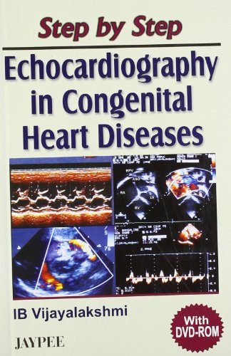 9788180617430: Step by Step Echocardiography in Congenital Heart Diseases with DVD-Rom (E): 2006