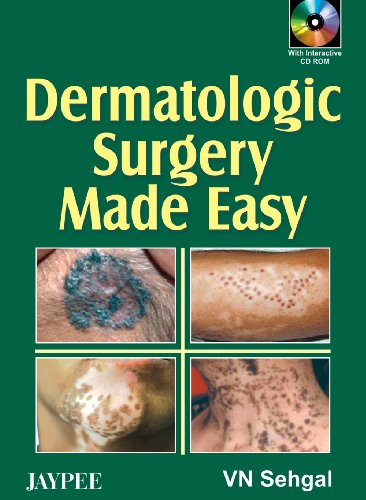 Dermatologic Surgery Made Easy: V N Sehgal