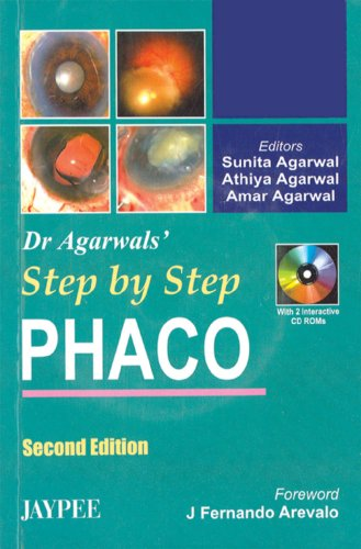 Step By Step Phaco (Second Edition): Sunita Agarwal, Athiya
