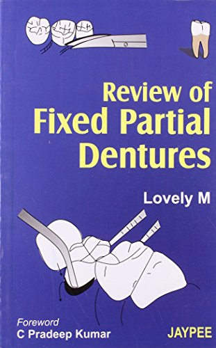 Review of Fixed Partial Dentures: Lovely M (Author)