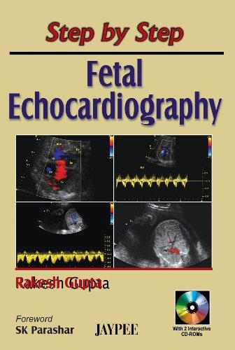Step by Step Fetal Echocardiography: Rakesh Gupta (Author) & S K Parashar (Frwd)